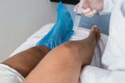 Injection of ozone in the knee, ozone therapy procedure
