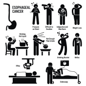Esophageal Esophagus Throat Cancer Symptoms Causes Risk Factors Diagnosis Stick Figure Pictogram Icons