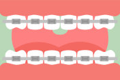 orthodontics teeth or dental braces, open mouth with healthy teeth and tongue