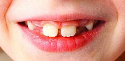 Closeup of a child's smile with missing teeth, for the development of teeth medicine